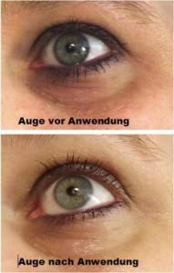 Auge vor und nach der Behandlung