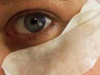 Collagen Pad unter dem Auge angelegt
