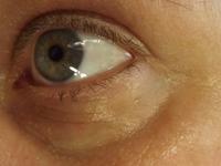 Der Bereich unter dem Auge schon deutlich abgeschwollen und Fältchen stark gelindert
