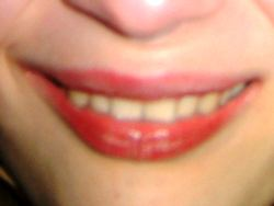 Schönes Lächeln mit Veneers