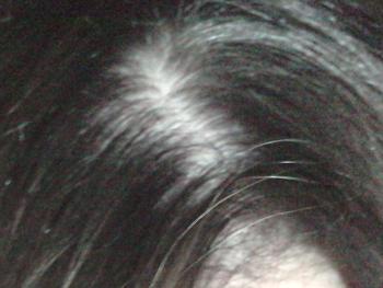Weniger Haare am Scheitel
