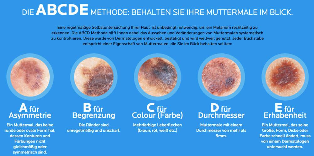 Hautkrebs - Die ABCDE MethodeHautkrebs - Die ABCDE Methode